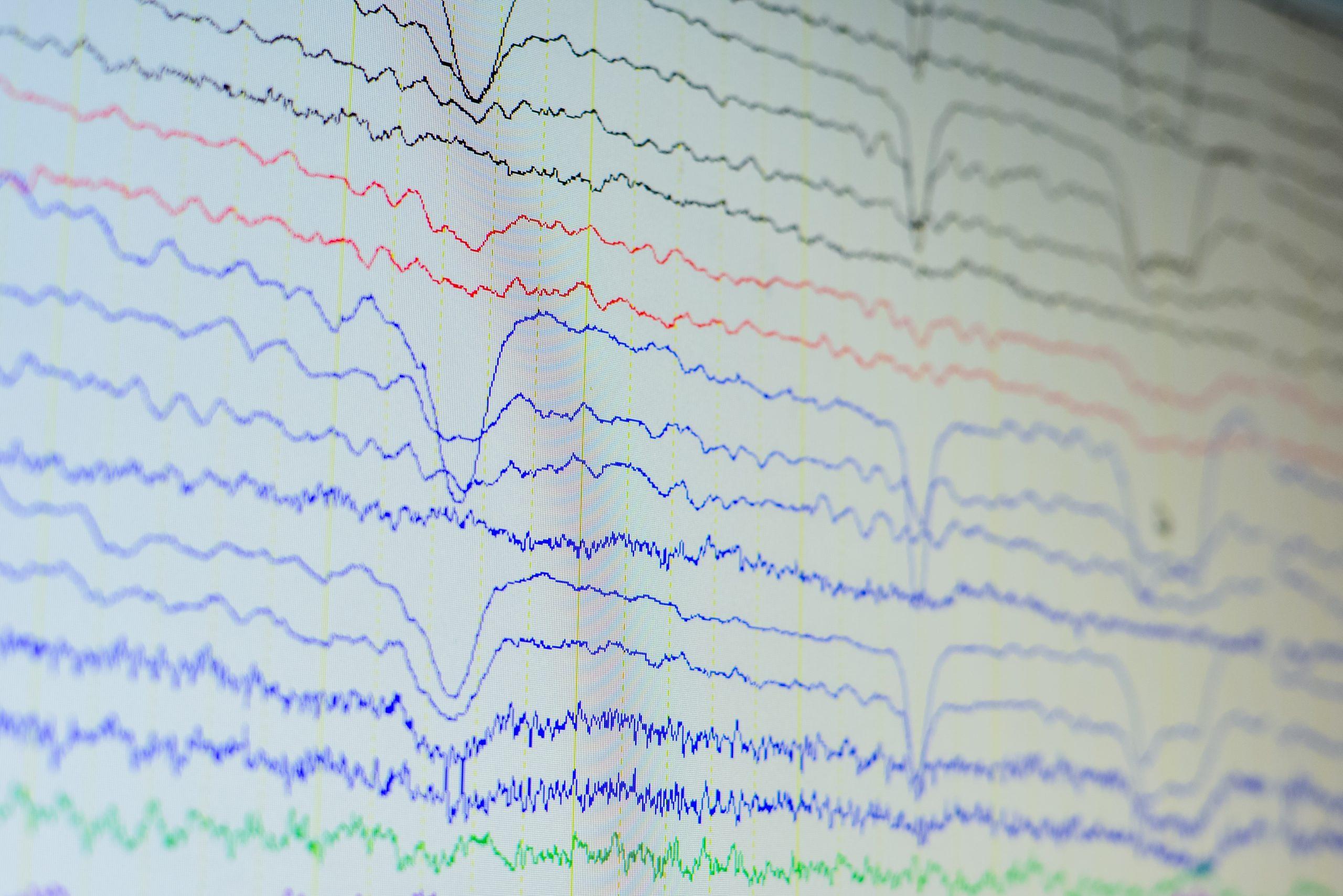 EEG recordings
